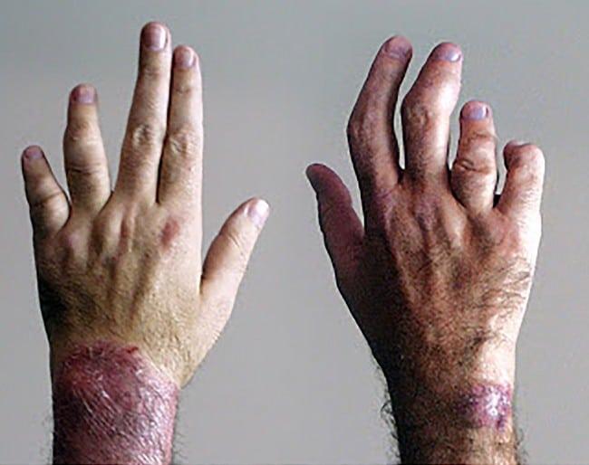 Artrite Psoriática – Causas, Sintomas e Tratamentos