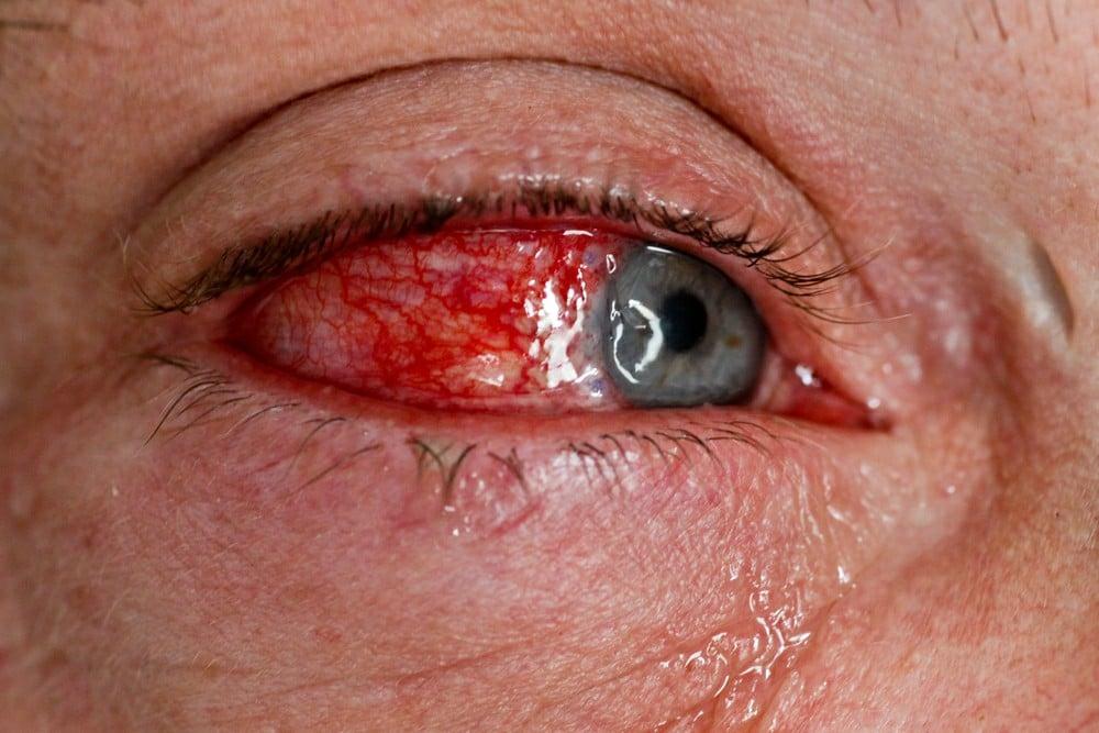 Os 10 Principais Sintomasde Artrite Reativa!