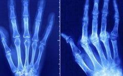 Artrite Reumatoide – O que é, Causas e Tratamentos