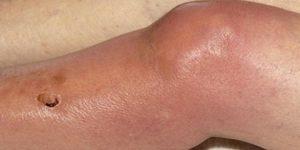 artrite séptica 1