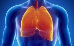 Asbestose – O que é, Causas, Sintomas e Tratamentos!
