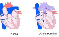 Atresia Pulmonar – O que é, Sintomas e Tratamentos