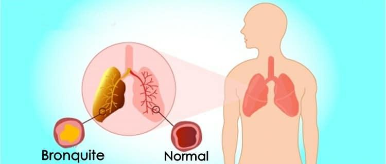 bronquite 2