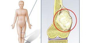 câncer ósseo 2