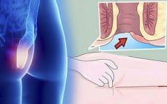 Os 5 Principais Sintomas do Câncer Anal!