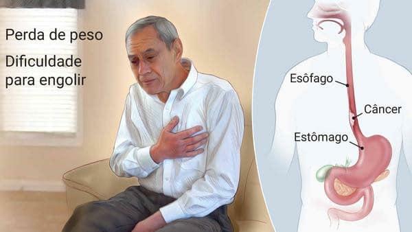 Câncer de Esôfago – O que é, Causas e Tratamentos