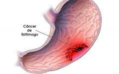 Os 9 Principais Sintomas doCâncer de Estômago!