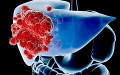 Os 10 Principais Sintomas de Câncer de Fígado!