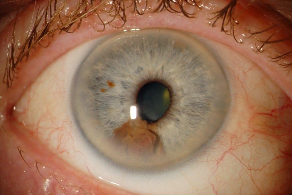 Os 7 Principais Sintomas doCâncer de Olho!