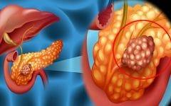 Câncer de Pâncreas –O que é, Sintomas e Tratamentos!