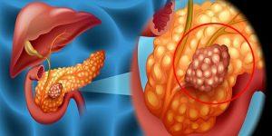 câncer de pâncreas 2
