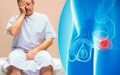 Os 6 Principais Sintomas doCâncer de Próstata!