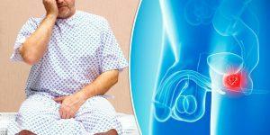 câncer de próstata 2