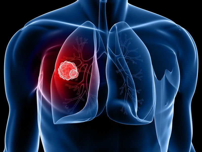 Sintomas do Câncer de Pulmão