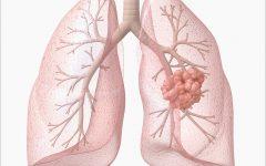 Câncer de Pulmão – O que é, Causas e Tratamentos