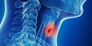 câncer de tireoide 1
