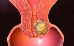 Os 6 Principais Sintomasdo Câncer do Útero!