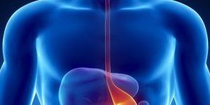 câncer esofágico