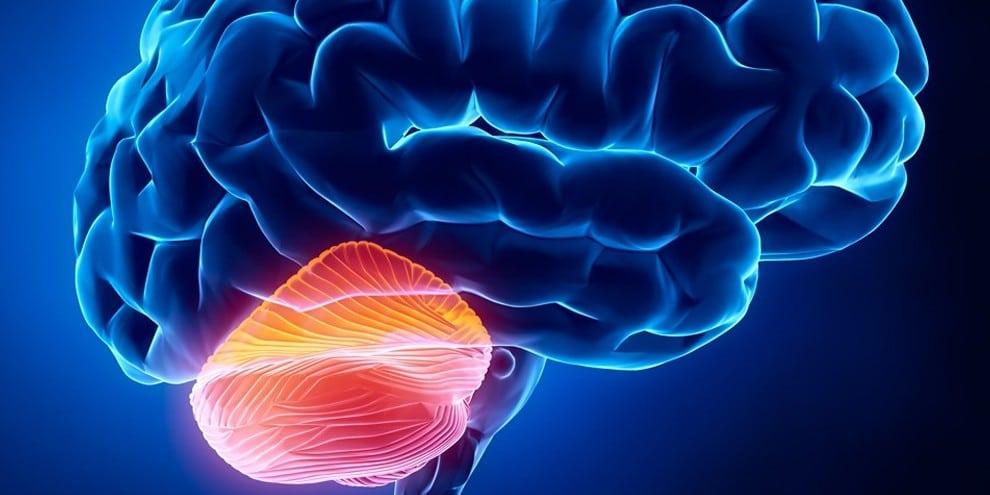 Degeneração Cerebelar – O que é, Causas e Tratamentos