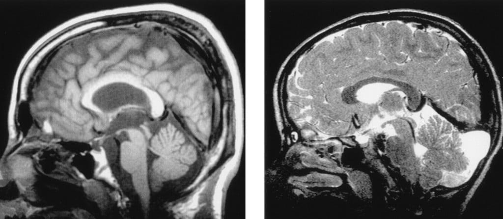 Sintomas da Degeneração Cerebelar
