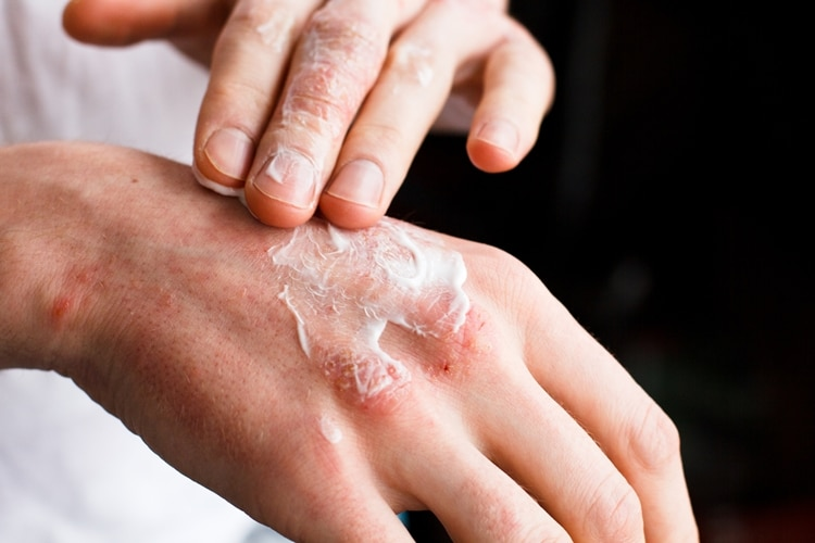 Causas da Dermatite