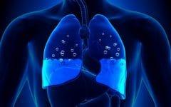 Edema Pulmonar – O que é, Causas e Tratamentos