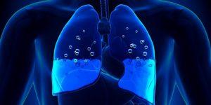 edema pulmonar 1
