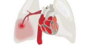 embolia pulmonar 1