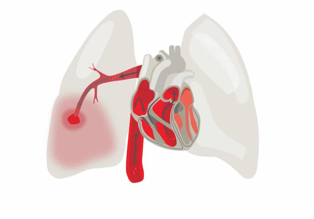 As 4 Principais Causas da Embolia Pulmonar!