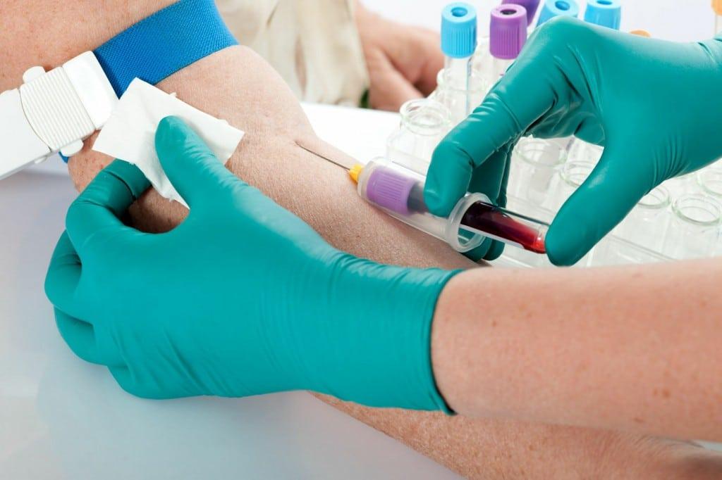 Como Diagnosticar uma Embolia Pulmonar