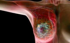 Os 10 Fatores de Risco do Câncer de Mama!
