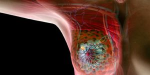 fatores de risco do cancer de mama 1