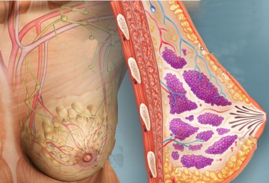 Fatores de Risco do Cancer de Mama