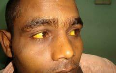 Hepatite B – O que é, Causas, Sintomas e Tratamentos