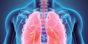 hipertensão pulmonar 4