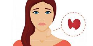 hipertireoidismo 3