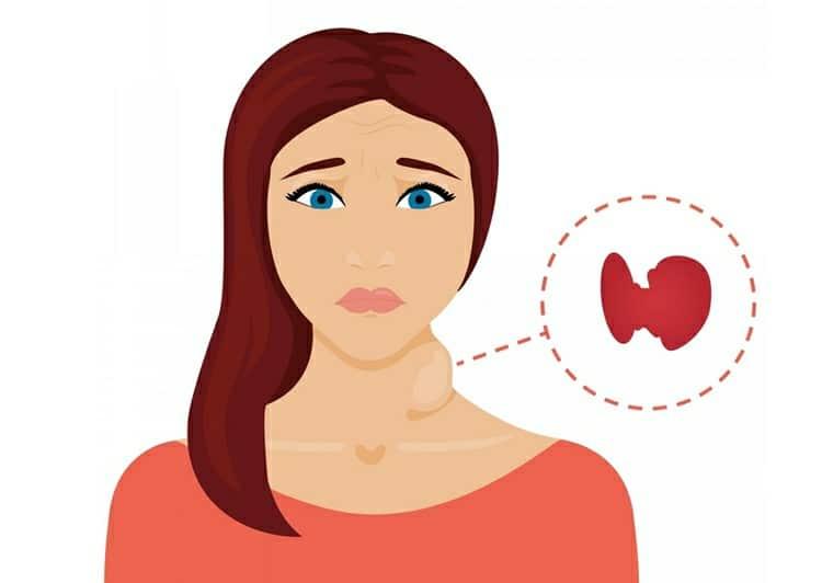 Os 11 Principais SintomasdoHipertireoidismo!