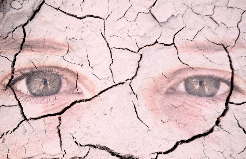 Ictiose Arlequim – O que é, Causas e Tratamentos
