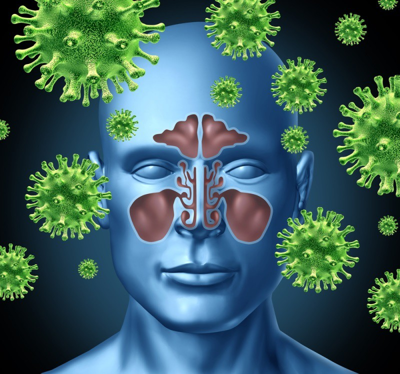 Sinusite Fúngica – O que é, Causas, Sintomas e Tratamentos!