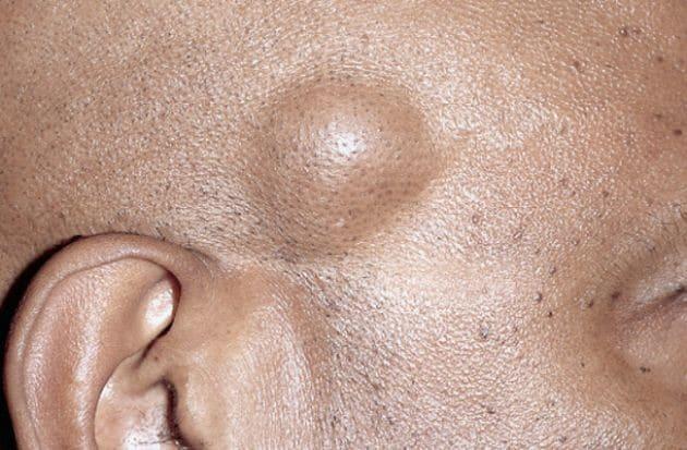 Causas do Lipoma