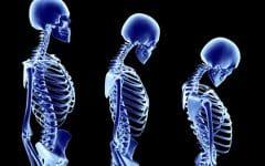 Osteoporose – O que é, Causas e Tratamentos