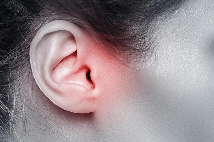 Otosclerose –O que é, Causas, Sintomas e Tratamentos!