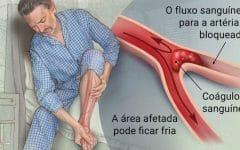 Trombose da Artéria – O que é, Sintomas e Tratamentos