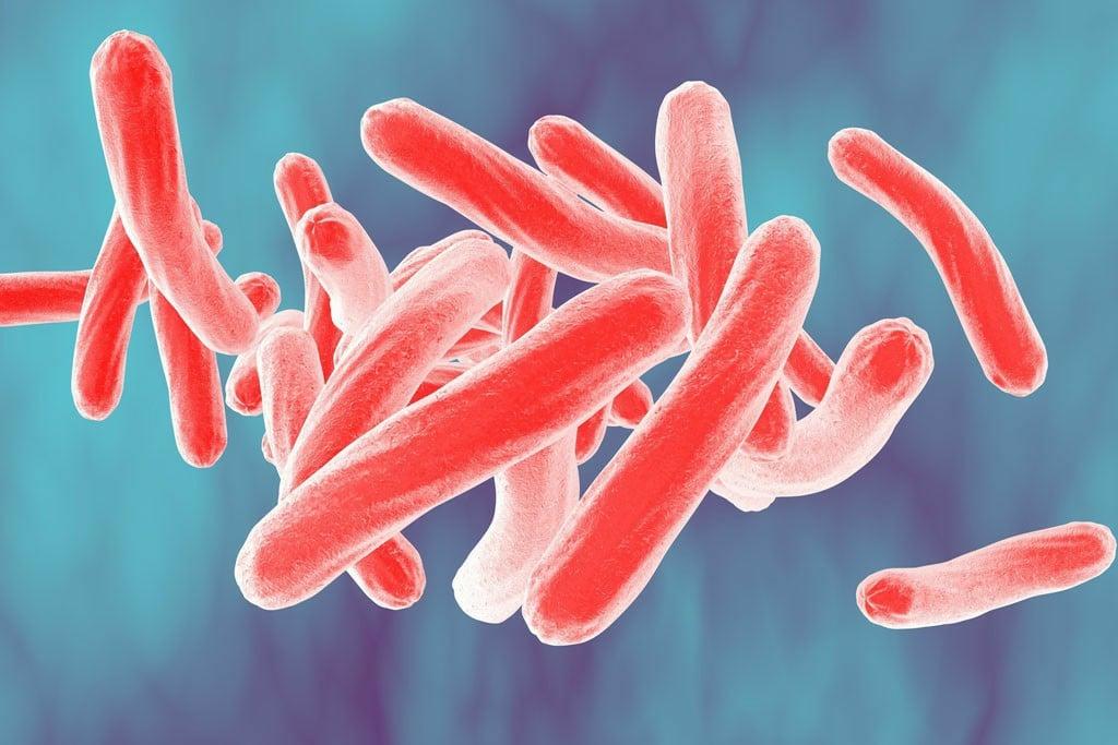 tuberculose 1
