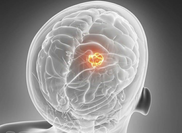 Tumor Cerebral – O que é, Sintomas e Tratamentos