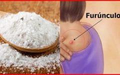 Como Eliminar Furúnculos Com Sal de Epsom!