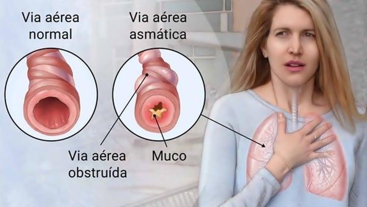 Como Usar Limão Para Acabar com a Asma