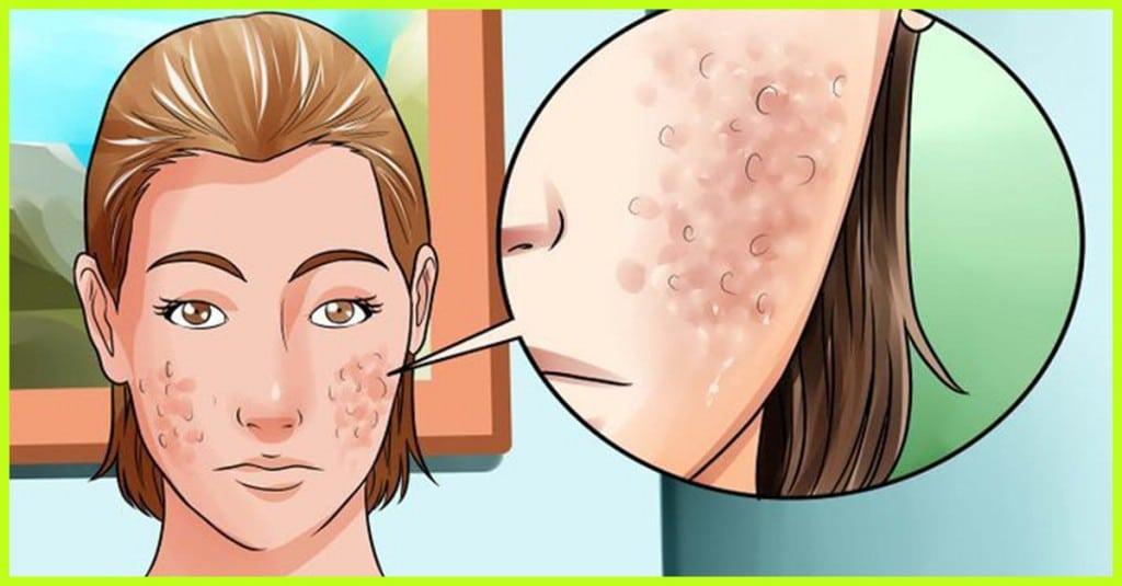 RemEdios Caseiros Para Eliminar Cicatrizes de Acne