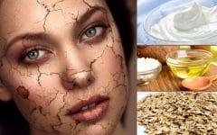 Os 10 Remédios Caseiros Para Acaba de Vez com a Pele Ressecada