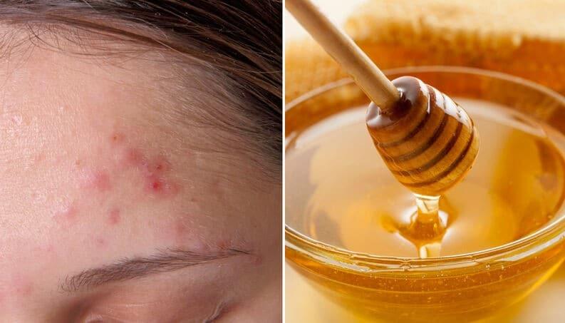 Os 10 Remédios Caseiros Para Eliminar Cicatrizes de Acne!